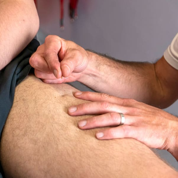 Dry needling | Rehab and Prevention | Praktijk voor kinesitherapie, personal coaching, blessurepreventie Wetteren